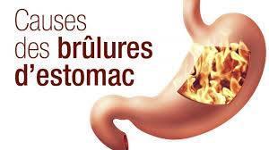 Causes des brulures estomac