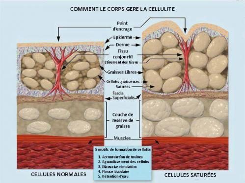 Cellulite 3