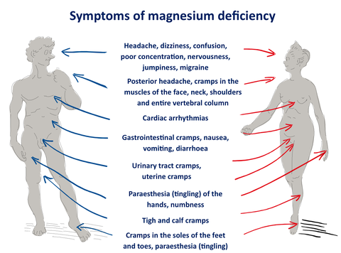 Magnesium deficiency1 large
