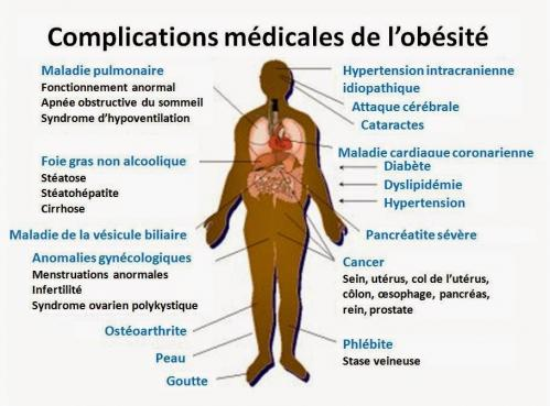 Obesite et complications