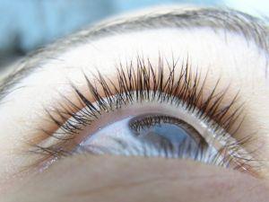 Oeil allergie
