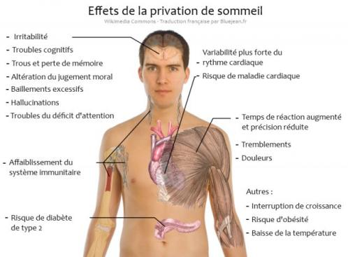 Privation sommeil