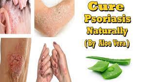 Psoriasis et aloe vera