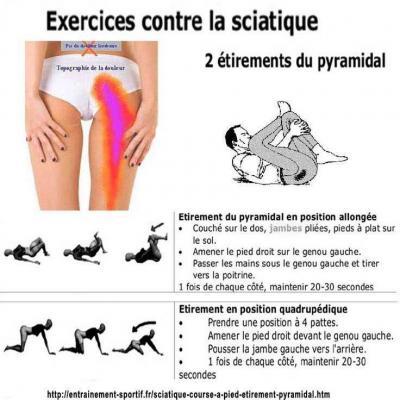 Sciatique 3