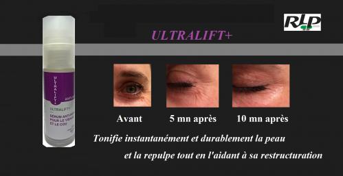 Ultralift 1